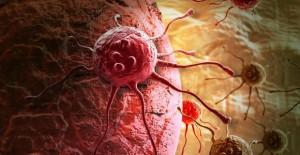 Perkiraan kenaikan Kanker sampai 3000% untuk segala usia dalam 100 tahun terakhir. Berikut ini alasannya..
